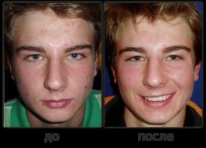 Демодекс Комплекс - до и после фото