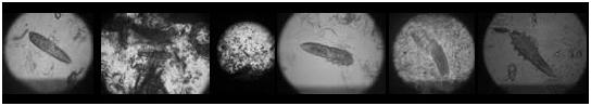 Фото, видео и картинки демодекса. Как выглядит демодекоз у человека