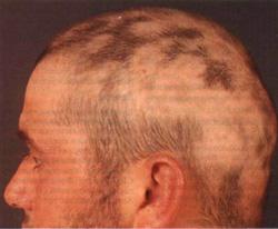 Демодекоз головы